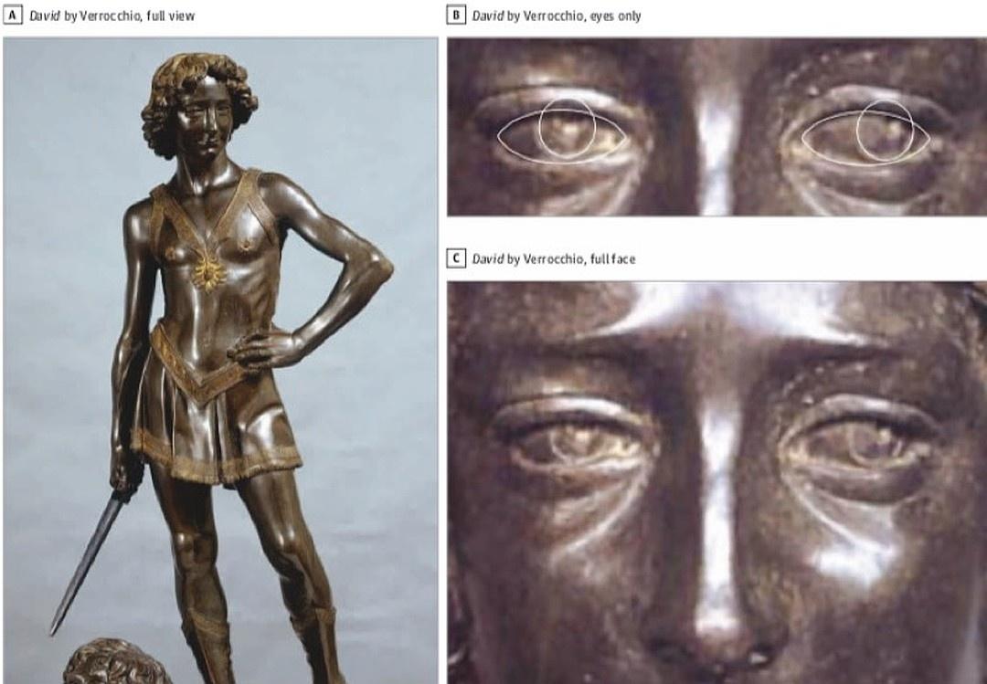 2. Скульптура «Давид». 1475 г.